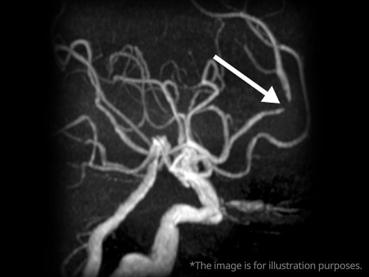 脳血管狭窄