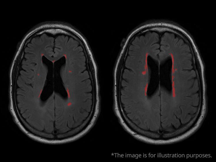 Cerebral White Matter Lesion Segmentation