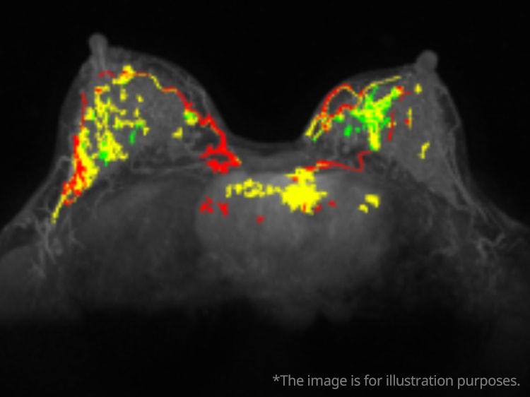 Breast MRI Analysis