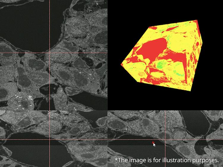 3D Construction of Pathology Images